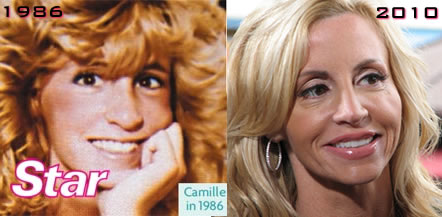http://gossipgenie.files.wordpress.com/2011/11/camille-grammer-before-after.jpg